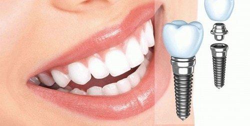 Cấy ghép implant cho răng cửa - Quy trình thực hiện 2