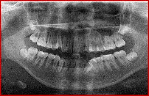 Cấy ghép implant cho răng cửa - Quy trình thực hiện 3