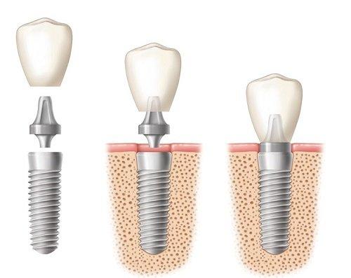 Cấy ghép implant cho răng cửa - Quy trình thực hiện 4