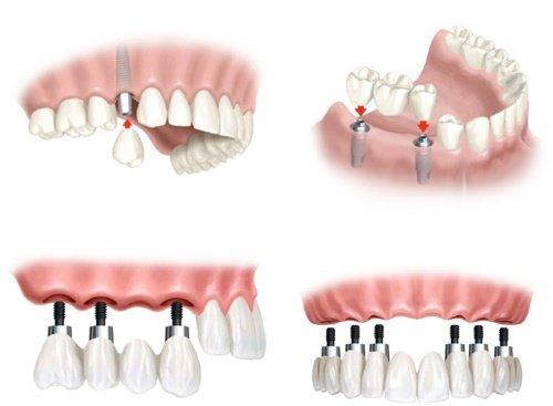 Cấy ghép implant cho răng cửa - Quy trình thực hiện 5