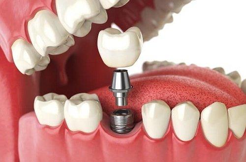 Chi phí trồng răng vĩnh viễn - Cập nhật giá mới 1