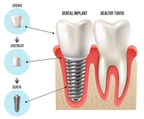 Chi phí trồng răng vĩnh viễn - Cập nhật giá mới 2