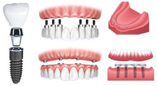 Chi phí trồng răng vĩnh viễn - Cập nhật giá mới 3