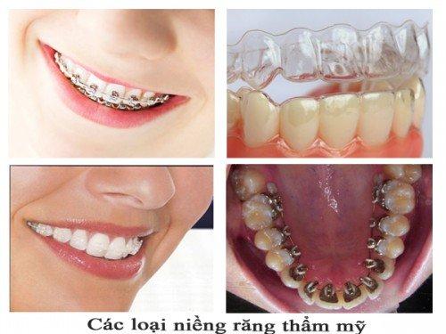 Niềng răng tại Cần Thơ - Dịch vụ uy tín chất lượng 2