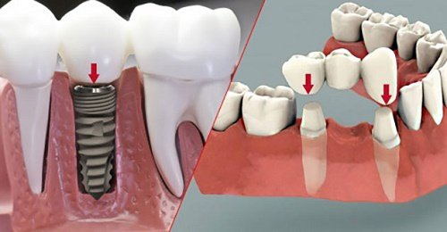 Trồng răng sứ cố định có tốt không? Tìm hiểu cách phục hình 1