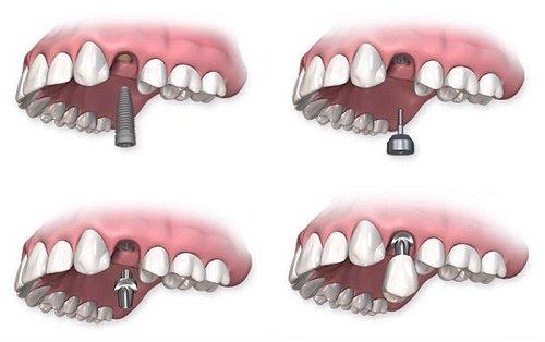 Trồng răng sứ cố định có tốt không? Tìm hiểu cách phục hình 2