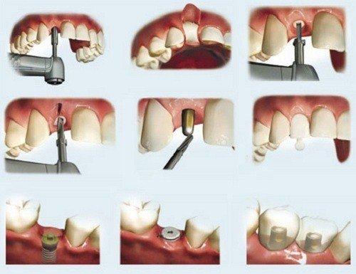 Trồng răng sứ cố định có tốt không? Tìm hiểu cách phục hình 3