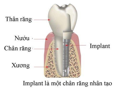 Trồng răng sứ cố định có tốt không? Tìm hiểu cách phục hình 4