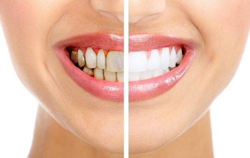 Tẩy trắng răng hút thuốc có sao không? Tìm hiểu các tác hại 3