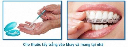 Tẩy trắng răng bằng máng có tốt không khi thực hiện tại nhà? 2