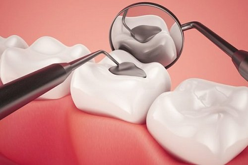 Trám răng có đau không? Tìm hiểu dịch vụ trám răng 1