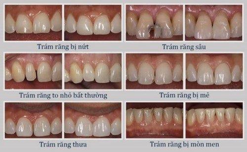 Trám răng có đau không? Tìm hiểu dịch vụ trám răng 2