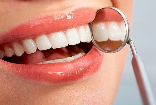 Trám răng có đau không? Tìm hiểu dịch vụ trám răng 3
