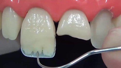 Trám răng cửa bị mẻ cần lưu ý điều gì? 1
