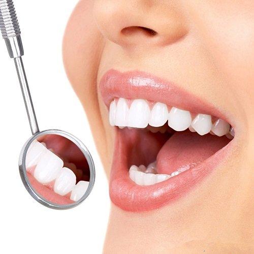 Trám răng cửa bị mẻ cần lưu ý điều gì? 2
