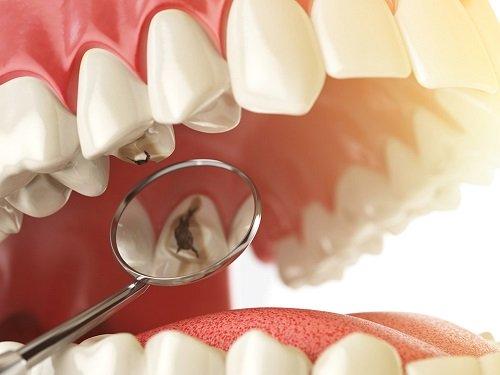 Trám răng giá bao nhiêu tiền? Có rẻ không? 1