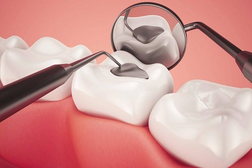 Trám răng giá bao nhiêu tiền? Có rẻ không? 2