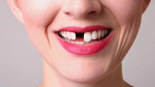 Trồng răng bằng cầu răng - Phương pháp thực hiện 1
