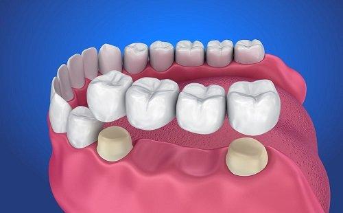 Trồng răng bằng cầu răng - Phương pháp thực hiện 2