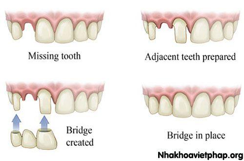 Trồng răng bằng cầu răng - Phương pháp thực hiện 3