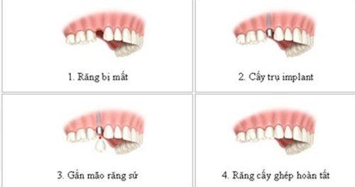 Trồng răng bị rụng - Kỹ thuật phục hình nào phù hợp? 2
