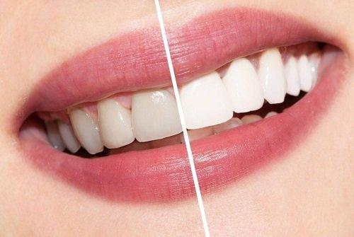 Tẩy trắng răng xong có được đánh răng không? Cần lưu ý thêm gì không? 2