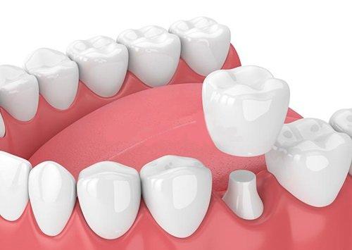 Bọc răng sứ ở Cần Thơ cần lưu ý điều gì? 1