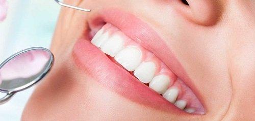 Bọc răng sứ ở Cần Thơ cần lưu ý điều gì? 2