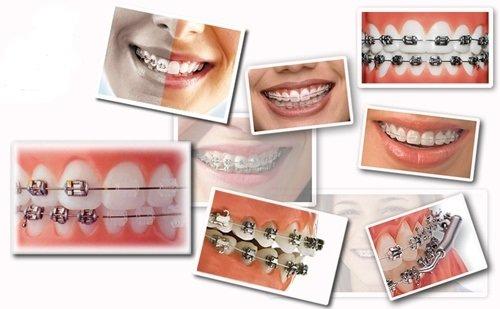 Niềng răng trả góp Cần Thơ cần đáp ứng các thông tin gì? 1