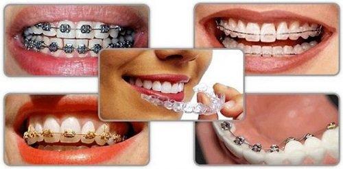 Niềng răng trả góp Cần Thơ cần đáp ứng các thông tin gì? 4
