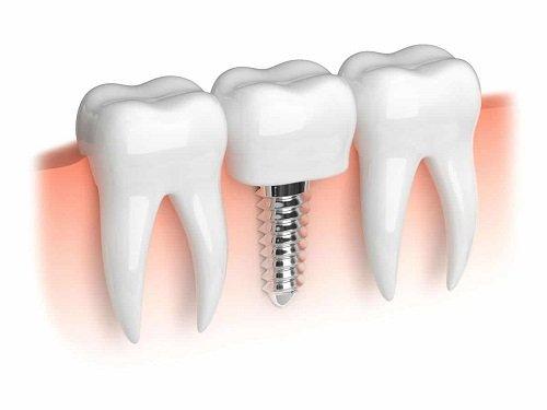 Trồng răng cấm hết bao nhiêu tiền? Có nên trồng không? 1