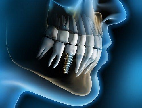 Trồng răng cấm hết bao nhiêu tiền? Có nên trồng không? 2