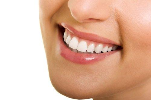 Trồng răng cửa hàm trên - Phục hình thẩm mỹ cho bạn 2