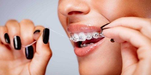 Niềng răng ăn uống như thế nào để có kết quả tốt? *
