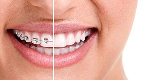 Niềng răng bao lâu thì nên có bầu? *