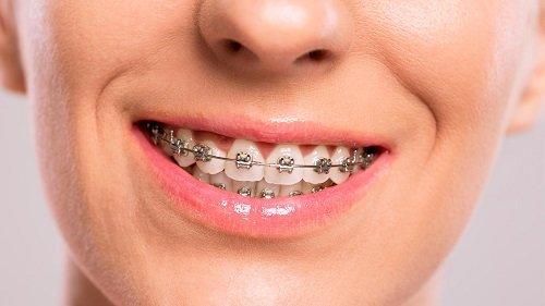 Thời gian thực hiện niềng răng bao lâu *