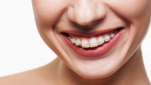 Niềng răng hô trong bao lâu mới có hiệu quả? 1