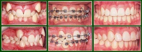 Niềng răng khểnh mất bao lâu thì có hàm răng đẹp? 3