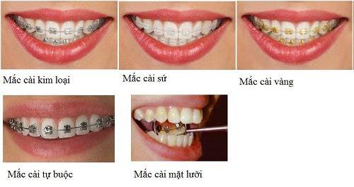 Niềng răng khểnh mất bao lâu thì có hàm răng đẹp? 4