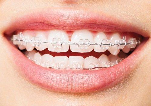 Niềng răng bị sưng lợi - Các dấu hiệu để nhận biết 1