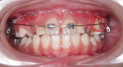 Niềng răng bị sưng lợi - Các dấu hiệu để nhận biết 2