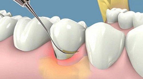 Niềng răng bị sưng lợi - Các dấu hiệu để nhận biết 4