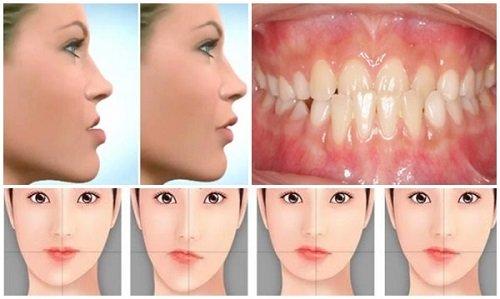 Niềng răng chỉnh hàm lệch lạc - Giải pháp hiệu quả 1