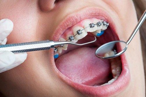 Niềng răng chỉnh hàm lệch lạc - Giải pháp hiệu quả 2