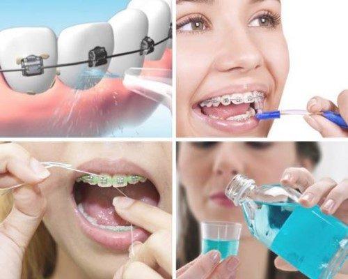 Niềng răng chỉnh hàm lệch lạc - Giải pháp hiệu quả 4