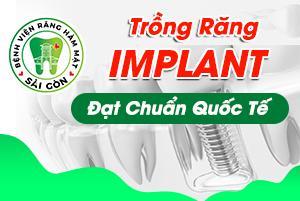 trung tâm cấy ghép implant