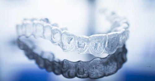 Niềng răng invisalign có nhổ răng không? Tư vấn niềng răng 2
