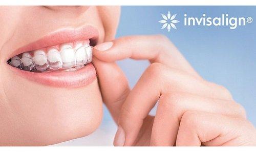Niềng răng invisalign có nhổ răng không? Tư vấn niềng răng 3