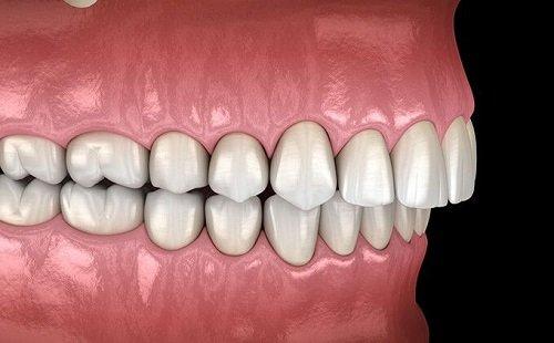 Niềng răng khớp cắn sâu nhanh chóng hiệu quả 1