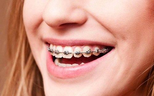 Niềng răng khớp cắn sâu nhanh chóng hiệu quả 2